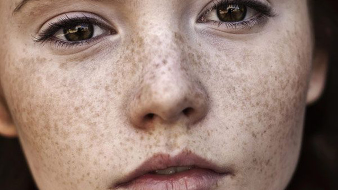 In hindi treatment home spots white on face at 5 Types