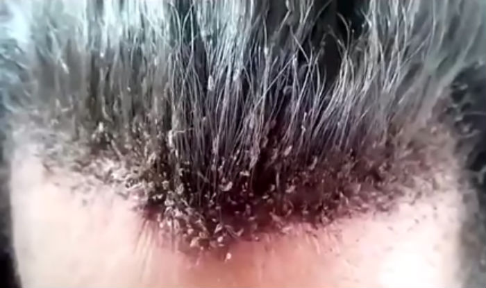 Head Full Of Lice Is The Weirdest Video You Will Ever See
