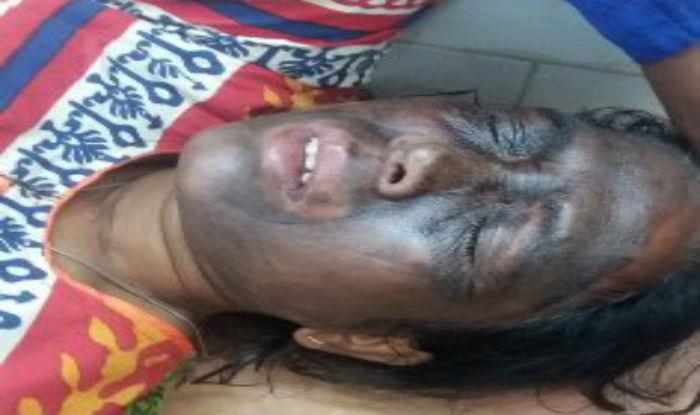 'Acid attack' victim Soni Sori's condition stable; Chhattisgarh police deny role in attack