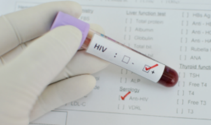 Another Patient Treated For HIV Successfully, Virus 'Undetectable' After Stem Cell Transplant
