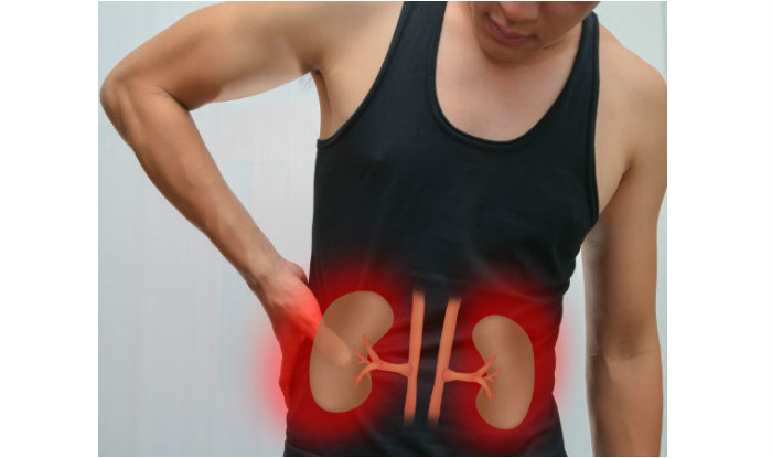 Kidney Failure Could be Because of Excess Vitamin D