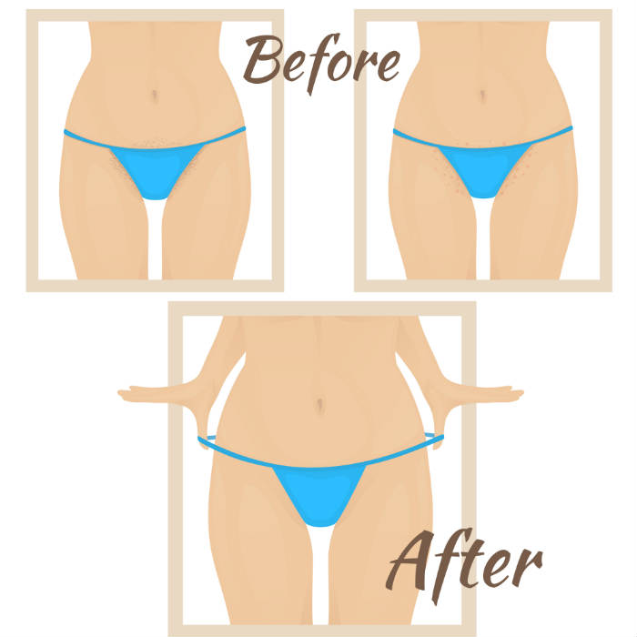 What to do before you get a bikini wax