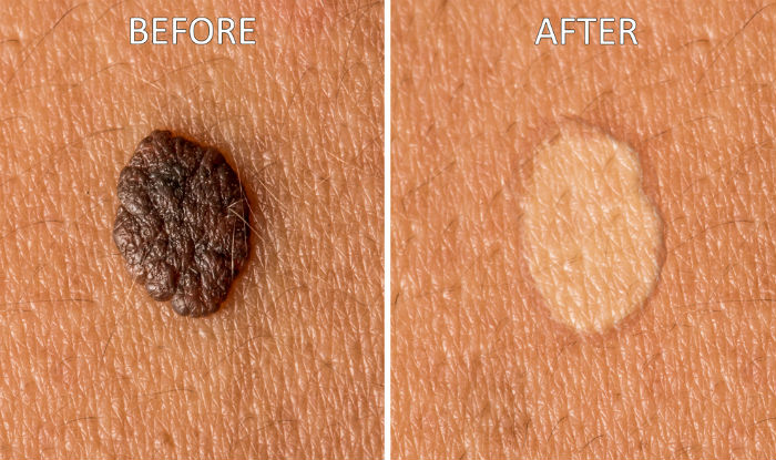 Best Natural Treatment For Moles