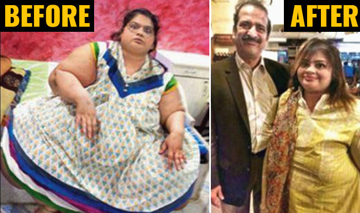 After Former World S Heaviest Woman Eman Ahmed Mumbai