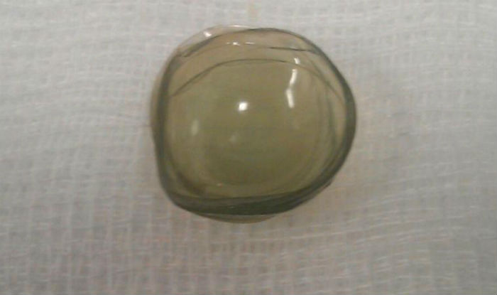 The lenses that were extracted from the eye