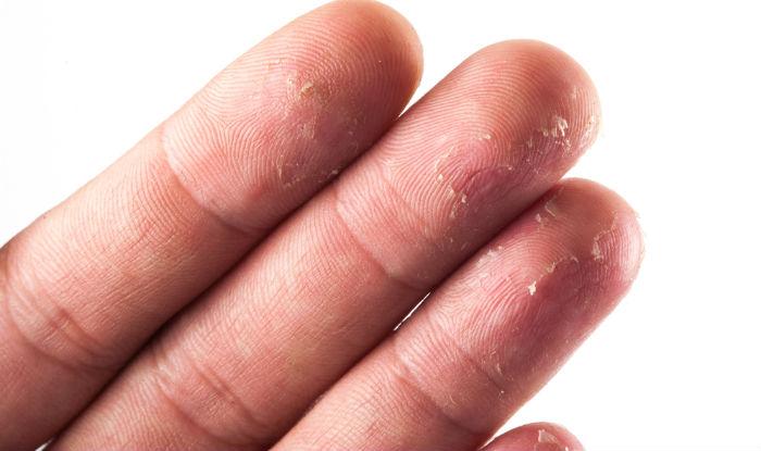 Fingertips Peeling : 5 Tips to Get Rid of Peeling Skin from Fingertips |  India.com