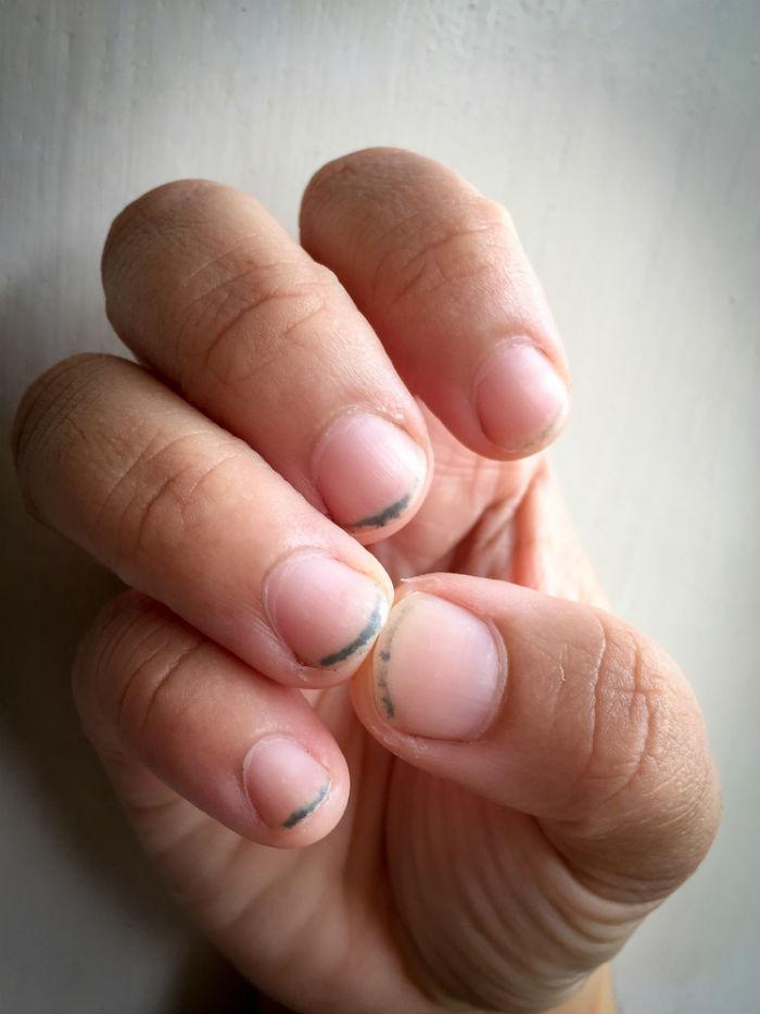 Dirt under fingernails