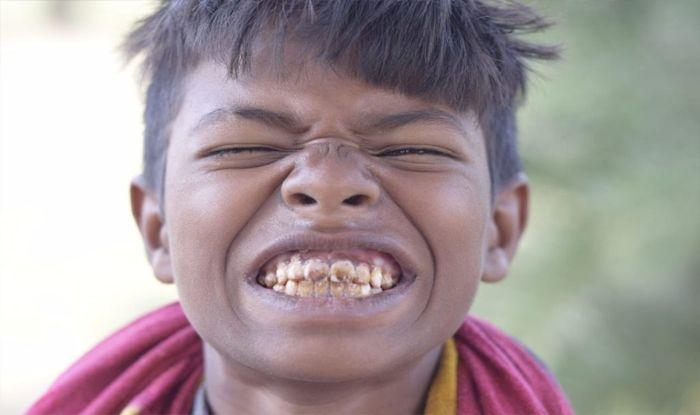 फ्लोराइड युक्त पानी से दांत भी खराब होने लगे हैं. (फोटो-आईएएनएस)