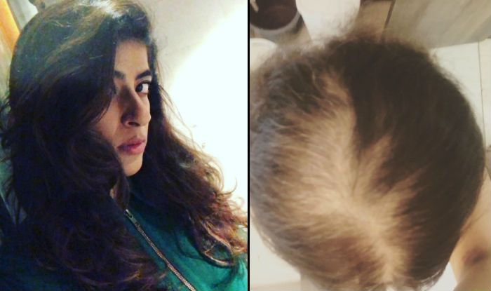 Tahira Kashyap's Latest Instagram Post on Hair Loss, Acceptance is What You Need to Understand About Body Positivity