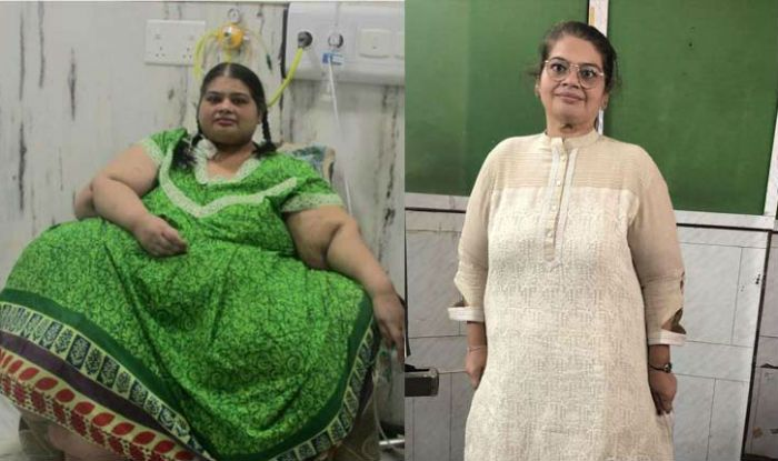 Asia's Heaviest Woman Sheds 214 Kgs in Four Years
