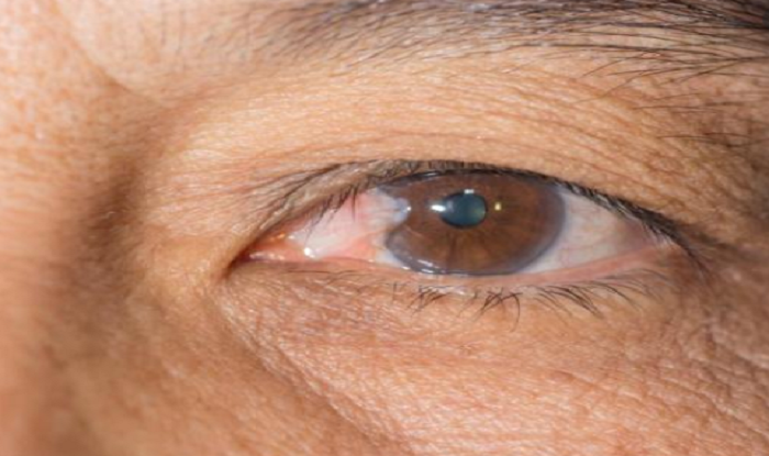Early Signs of Glaucoma Progression to Blindness Can be ...